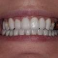 After transformation, with 6 veneers on upper arch