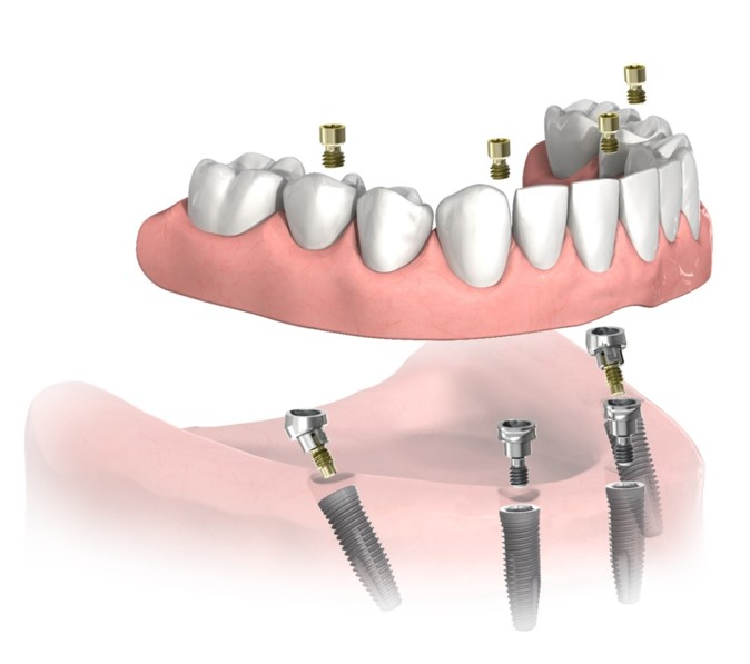 Acrylic-Titanium All-On-4 Bridge dental implant cost