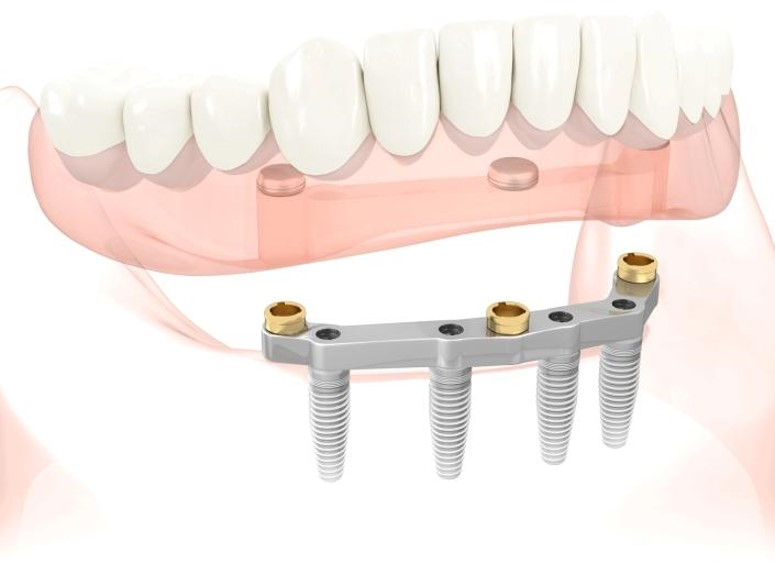 Bar Supported Denture cost