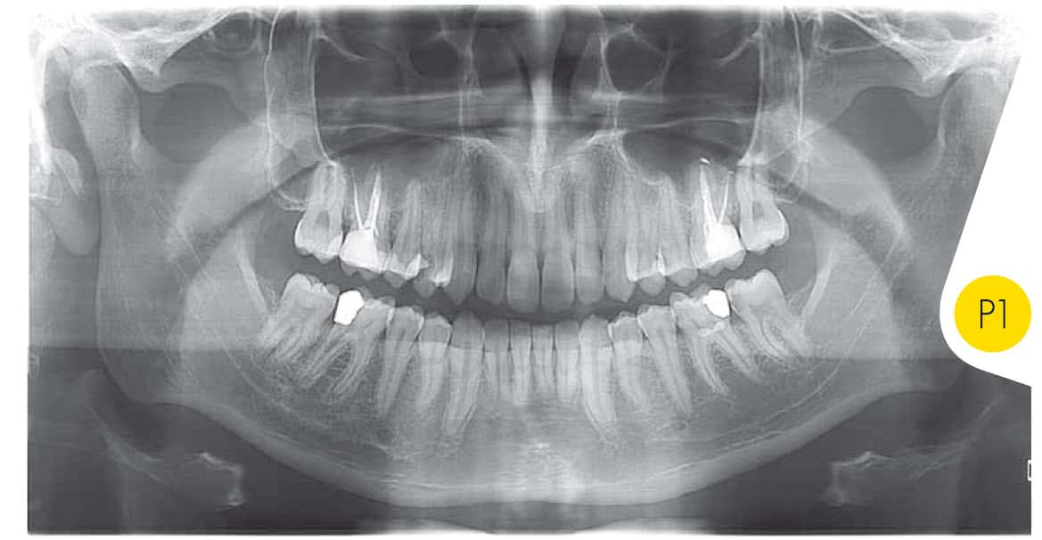 dental-ct-scan-panoramic.jpg
