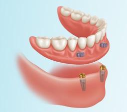 denture-stabilization