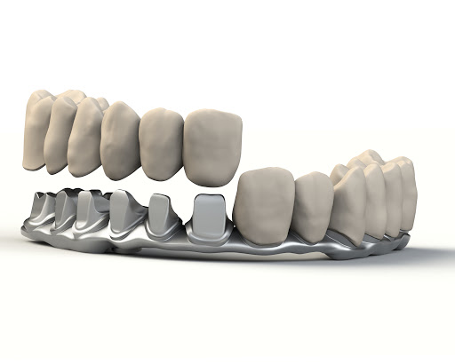 Toronto Bridge All on Four dental implant cost